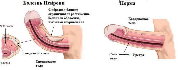 как увеличить длину пениса Карелия