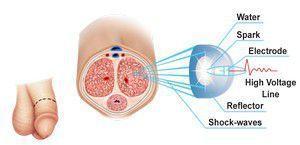 Промежутков препарат для нормализации потенции связи высокой