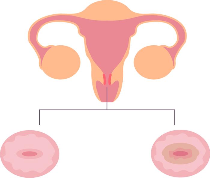Эрозия шейки матки: причины, симптомы и лечение
