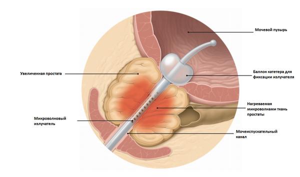лечение простатита темпро